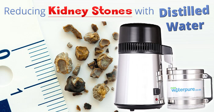 Reducing kidney stones with distilled water